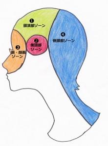 頭痛ゾーン療法
