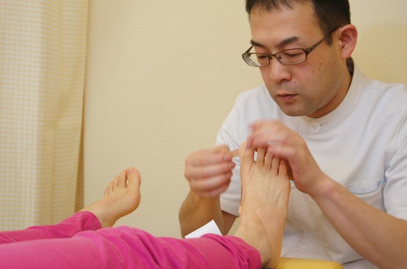 外反母趾のテーピング施術方法